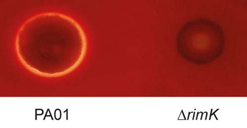 Krvna ćelija zaražena bakterijom Pseudomonas aeruginosa sa proteionom RimK (levo) i bez njega (desno)
