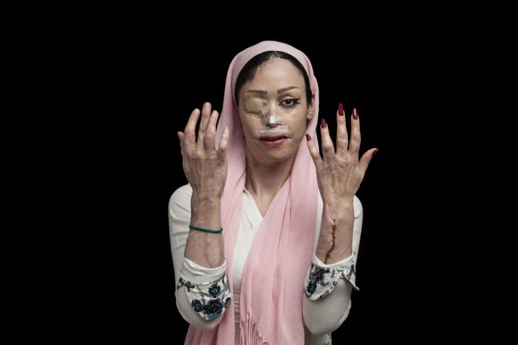 Bacanje kiseline je vrsta nasilja koja je, po zvaničnim podacima i lokalnim vestima, u porastu u Iranu. Žrtve su uglavnom žene i deca, a cilj napadača je da ih unakazi, muči, i uništi bilo kakav budući društveni život žrtve. Ovakvo nasilje je motivisano kulturnom destrukcijom, netolerancijom i dešava se u situacijama kao što su porodični konflikti, odbijanje bračne ponude, osveta ili zahtev za razvodom. Pored fizičkih i psihičkih oštećenja žrtve su izložene stigmatizaciji od strane društva. Žrtvama je neophodna hitna medicinska i finansijska podrška, ali na žalost ni jedna vladina ili nevladina organizacija ne prati ove slučajeve, pa su oni prinuđeni da se sami snalaze uz eventualne donacije.